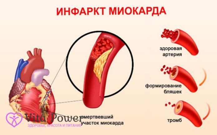инфаркт миокарда причины, диагностика, лечение