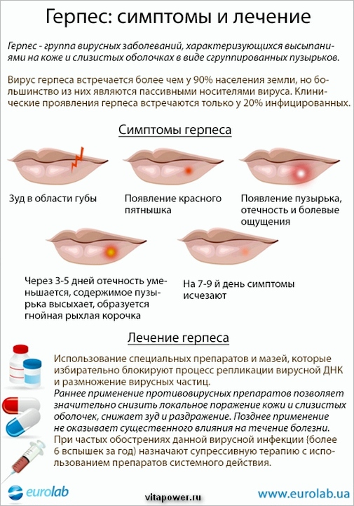 Лечение герпеса у женщин VitaPower.ru