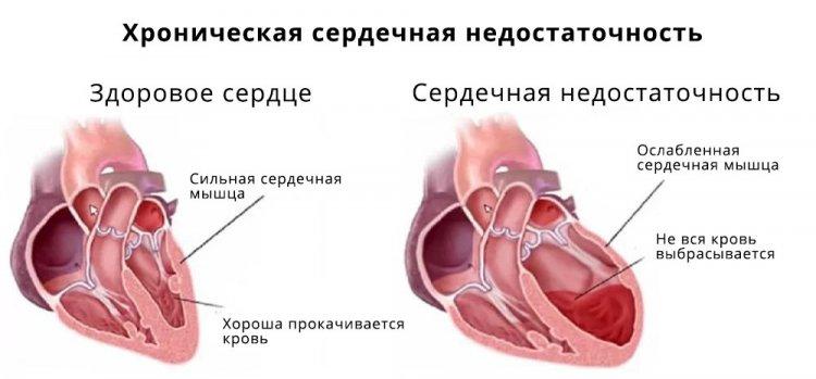 Лечение и рекомендации хронической сердечной недостаточности