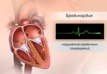 Брадикардия – нарушение сердечных сокращений